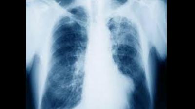 Asbestos Awareness - Central Coast - Tuggerah